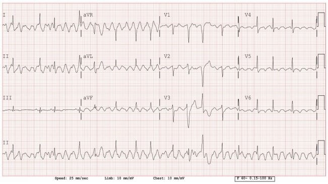 ECG in a Patient with a Fractured Arm Mimicking Atrial Flutter